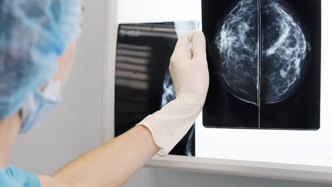 breast cancer imaging